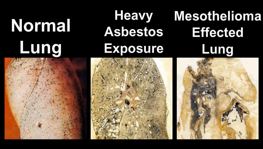 asbestos removal services ottawa